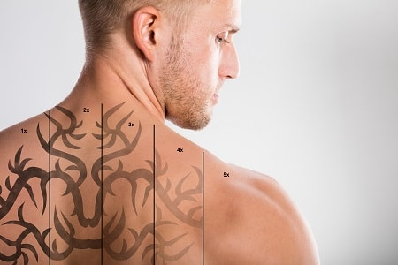 dubai tattoo removal