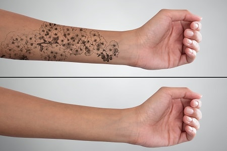 tattoo removal dubai